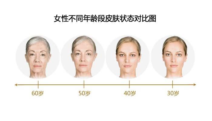 女性皮肤衰老吃什么保健品能延缓脸部老化?